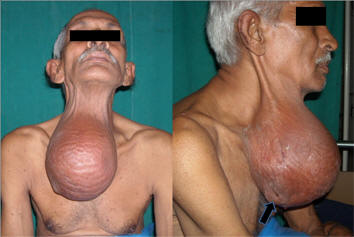Erect Male Nipples 64